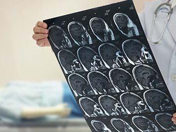 doctor examinando una imagen médica