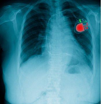 Radiografía del torso de un paciente con un marcapasos