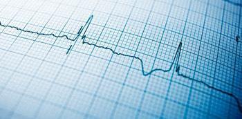 Electrocardiograma con fibrilación auricular y cardiopatía isquémica