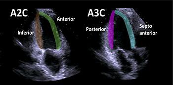 Ecocardiograma con información básica