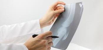 Radiología de una rodilla