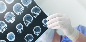 Doctora con una ecografía cerebral