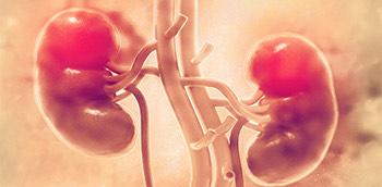 Riñones humanos con tumores cancerígenos