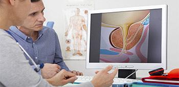 Médicos observando imagen de la próstata