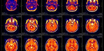 Neuroimagen cerebral