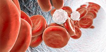 Glóbulos rojos a través de una trombosis