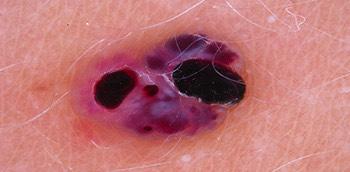 Dermatoscopia de una lesión melanocítica