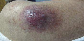 Carcinoma de células de Merkel en la piel
