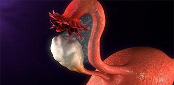 Útero con endometriosis