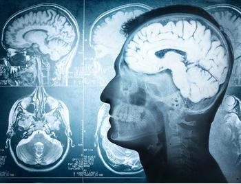 Radiografía del cerebro para psiquiatría