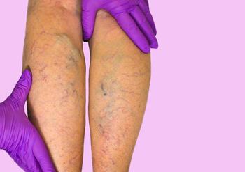 Médico examinando piernas con flebología