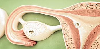 Imagen de unos ovarios con miomas